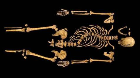 Skeleton of Richard III, with spinal curvature